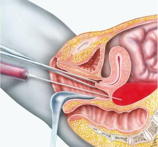 Как проводят пункцию яичников