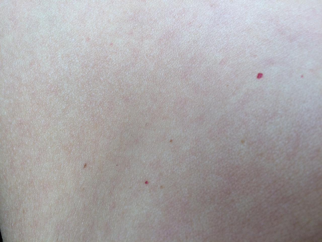 На теле появились красные пятна – что это может быть?
