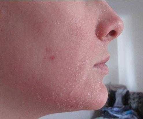 Уход после биоревитализации кожи лица – советы и запреты
