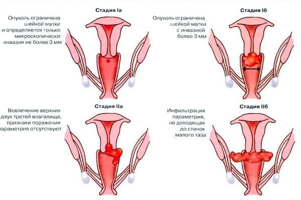 О раке матки у женщин: симптомы, признаки, прогноз жизни на разных стадиях