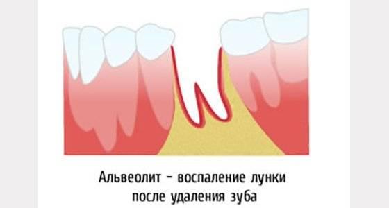 Сколько дней может быть боль после удаления зуба мудрости