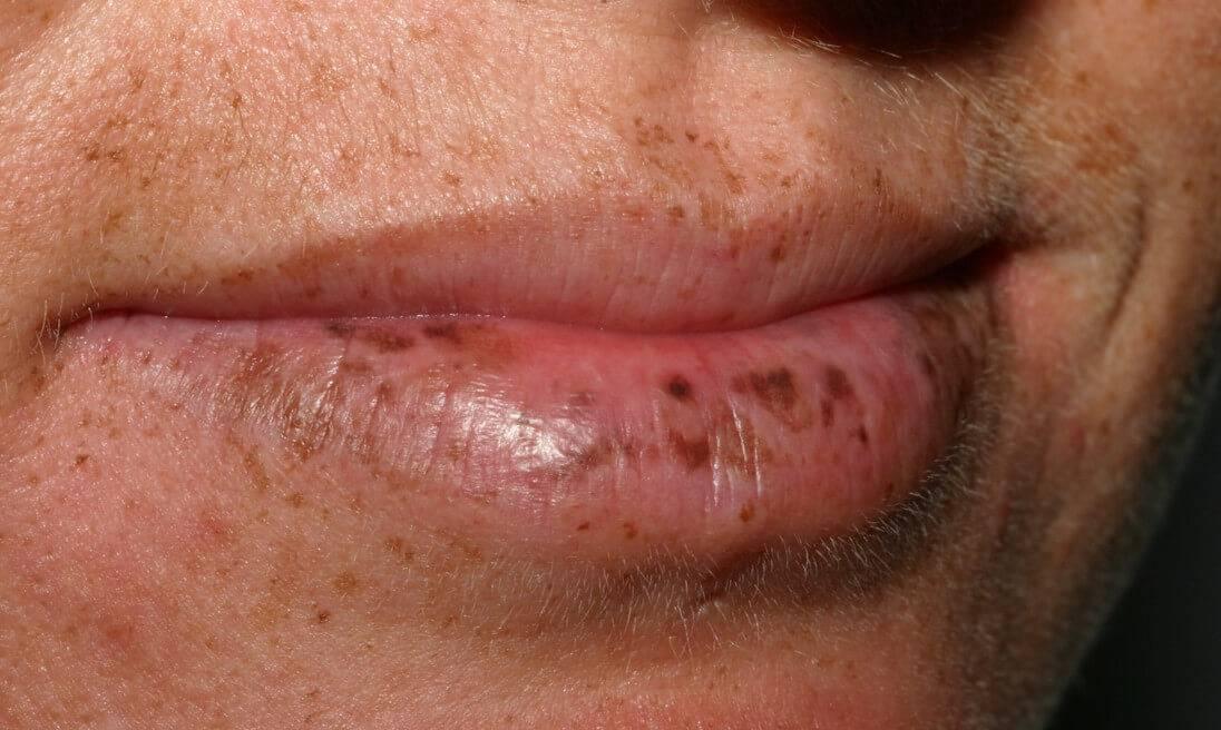 Причины пигментация над верхней губой и методы избавления