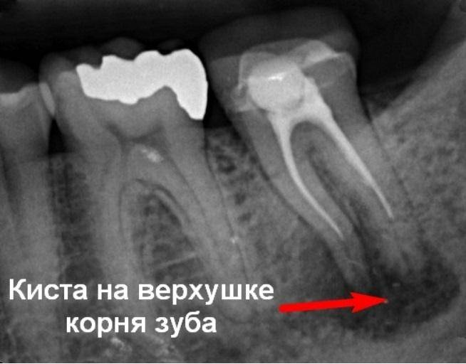 Новости и статьи по стоматологии