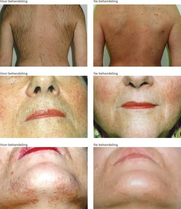 Электроэпиляция: сила тока против нежелательных волос на лице