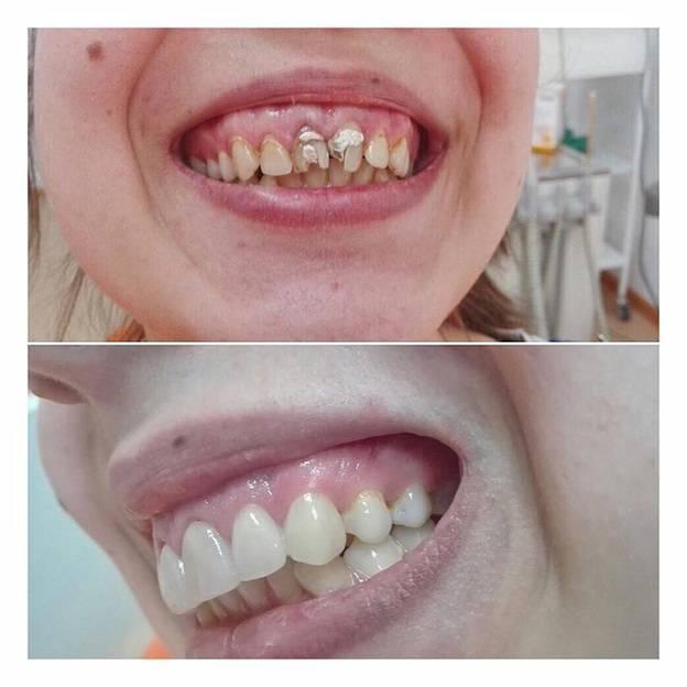 Как сделать себе клыки навсегда. можно ли нарастить и заточить клыки в домашних условиях, как сделать искусственные зубы в стоматологической клинике