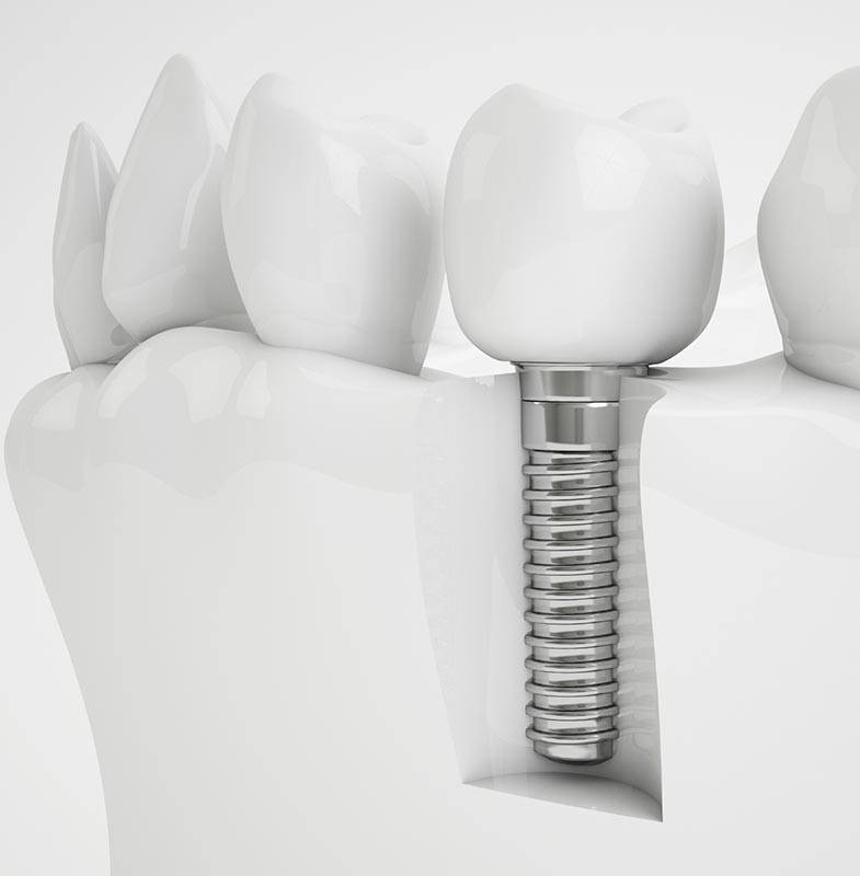 Лучшие импланты зубов