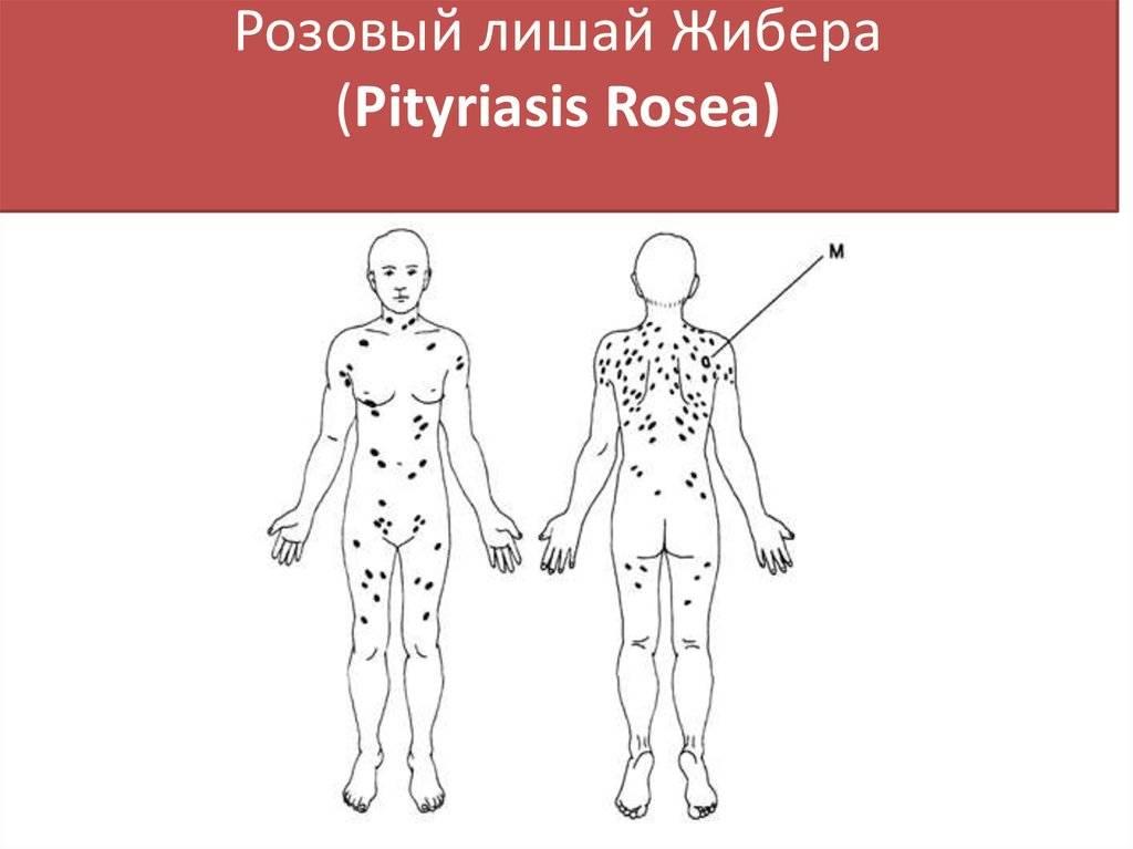 Розовый лишай: «темная лошадка» дерматологии