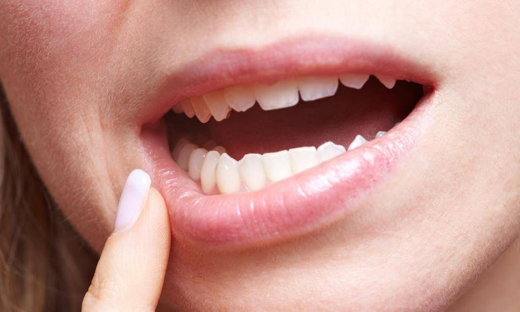Волдырь на внутренней стороне губы – что делать?