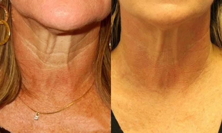 Как избавиться от морщин на шее и декольте