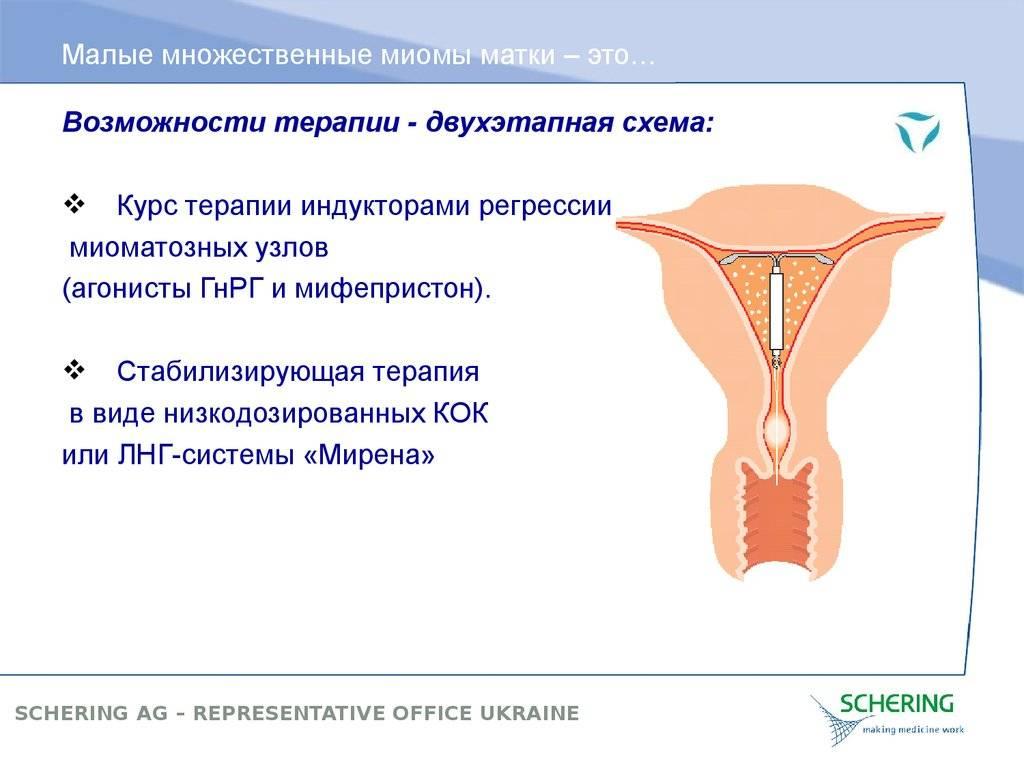 Какие противозачаточные таблетки при миоме матки рекомендуется принимать?