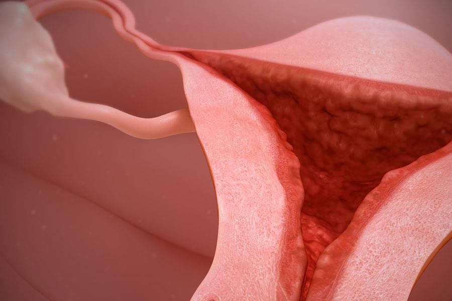 Почему эндометриоз вызывает задержку менструации