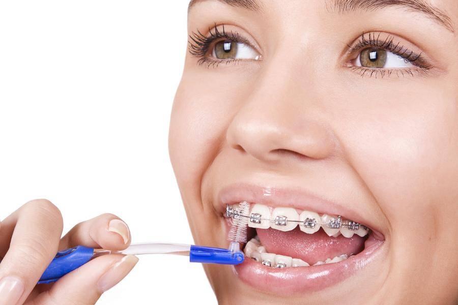 Шинирование зубов после брекетов — закрепление полученного результата