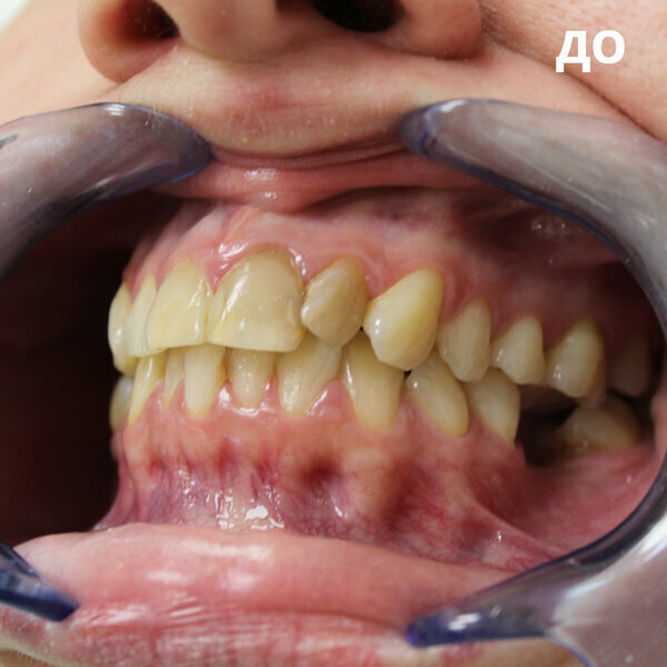 Санация полости рта: что это, кто и в каких случаях нуждается