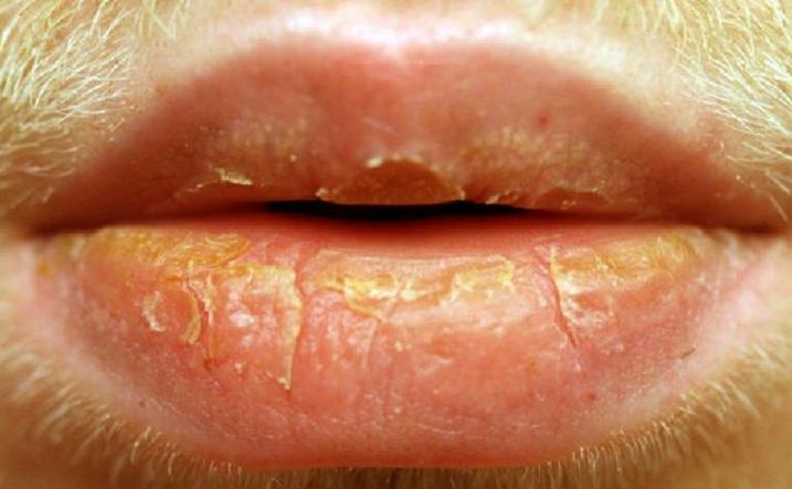 Мозоль на губе у новорожденного: не беспокоиться или пора начать действовать?