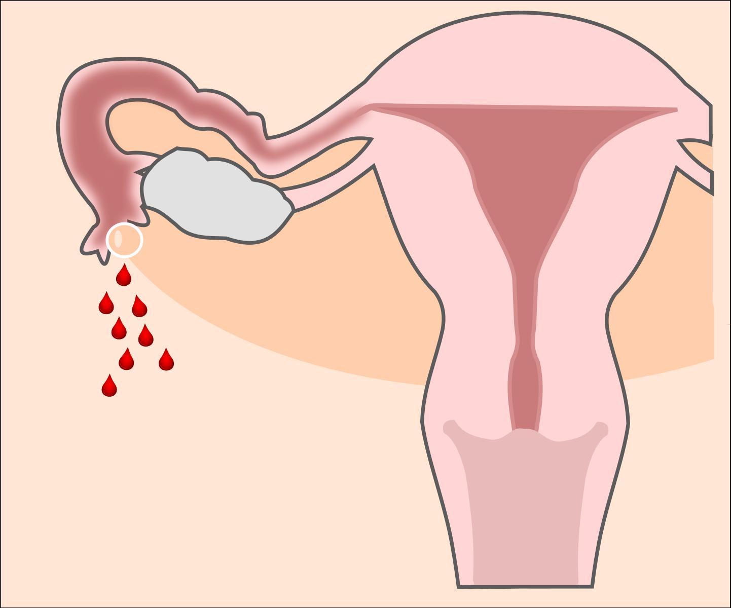 Изменения в менструациях с началом климакса