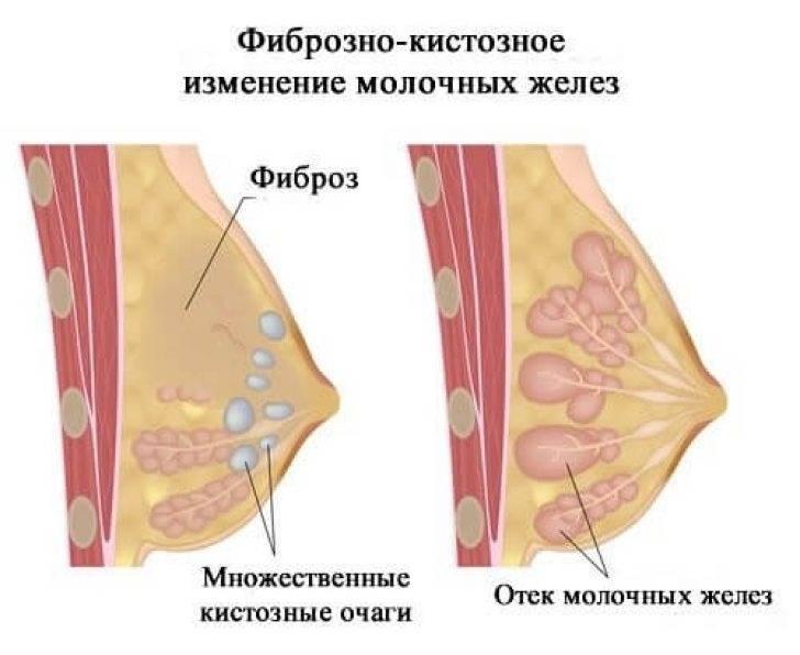 Фиброзно-жировая инволюция молочных желёз