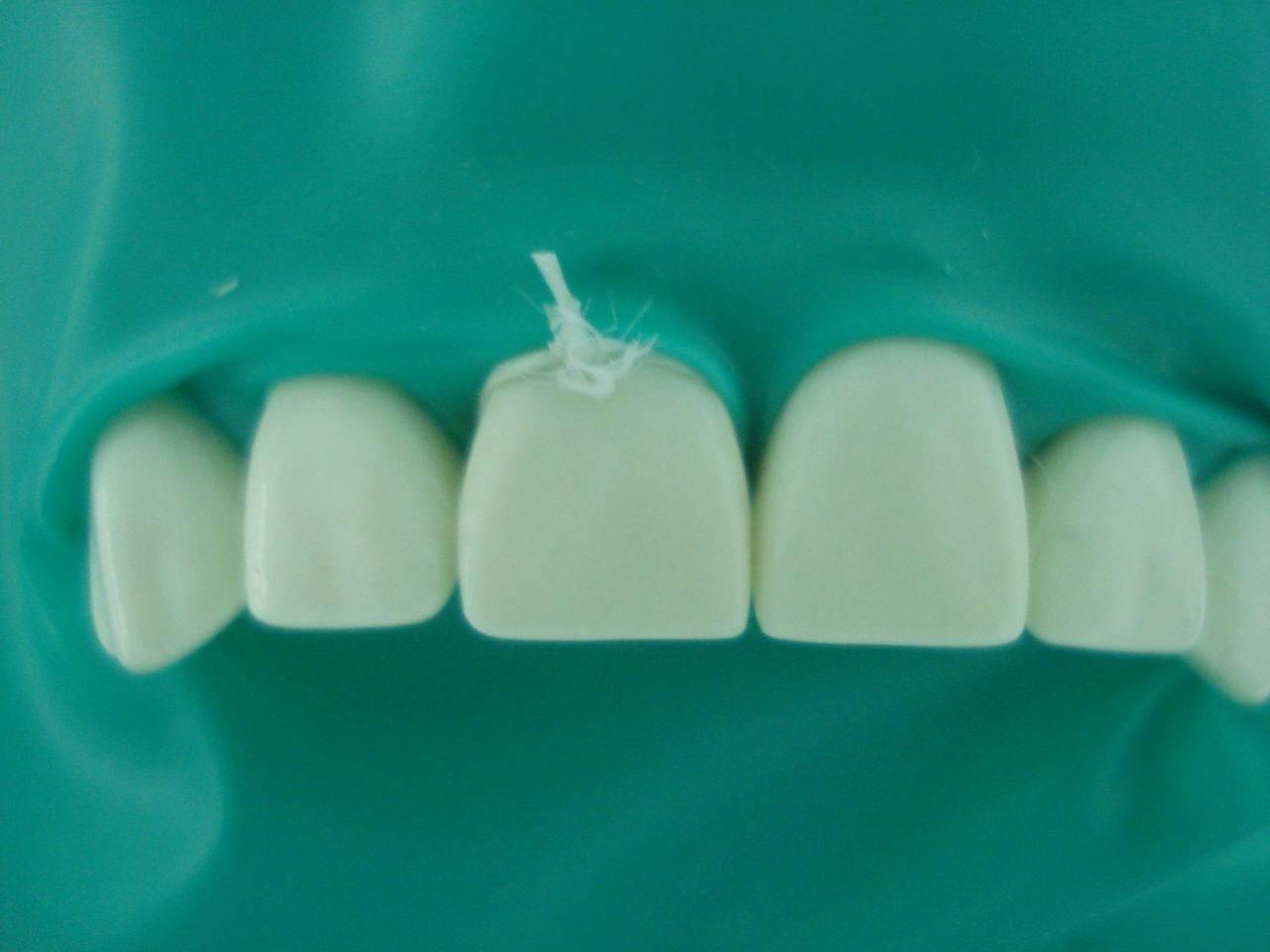 Раббердам или коффердам в стоматологии: влияние латексной защиты на качество лечения зубного ряда