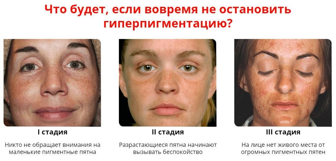 Почему на лице появляются пигментные пятна у женщин