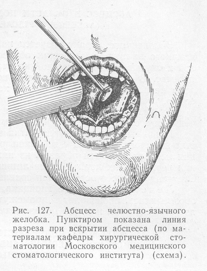 Абсцесс и флегмона языка