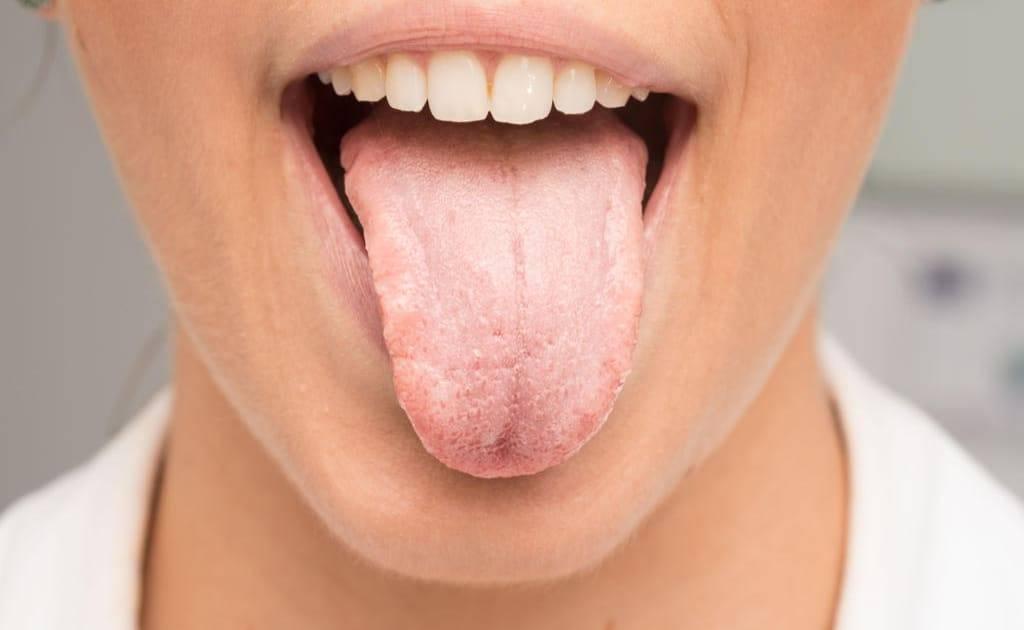О чем говорит горечь во рту: причины и диагностика