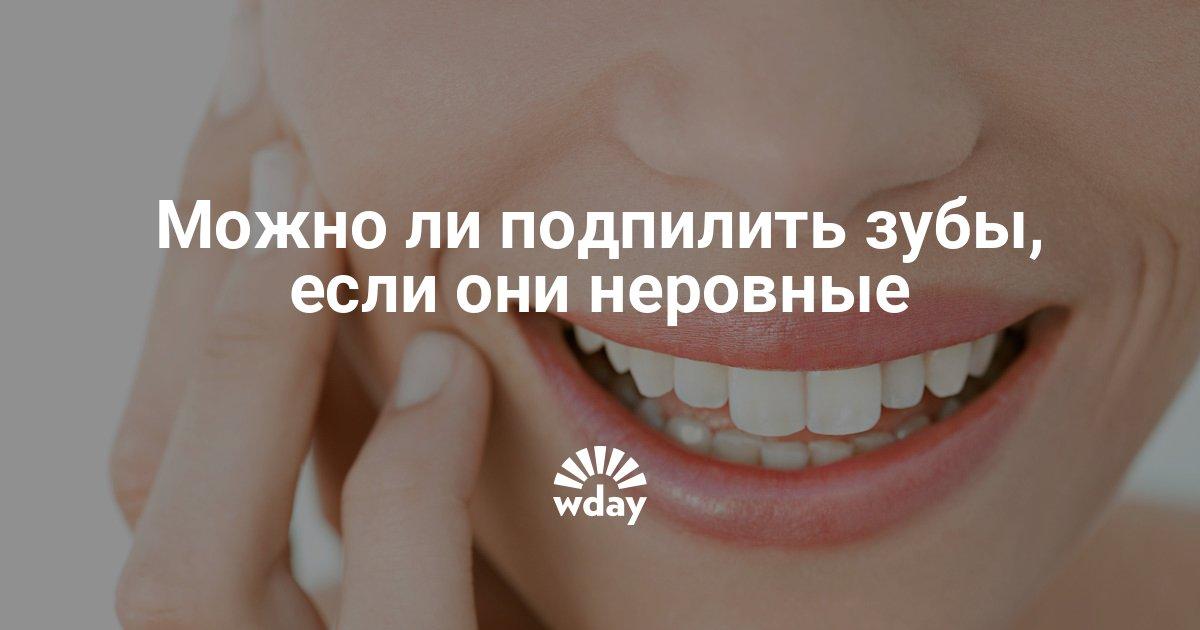 Можно ли убрать клыки — последствия и опасности удаления зубов на верхней челюсти