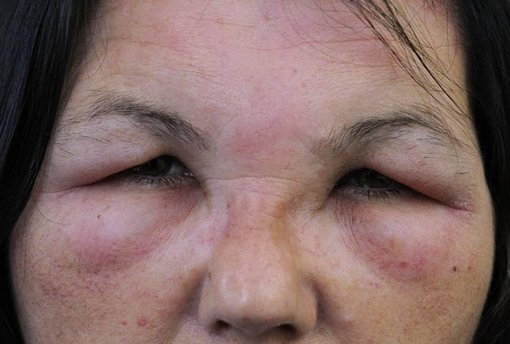Аллергия на коже: виды, проявления, симптомы и варианты лечения. 140 фото и видео советы по выявлению аллергена