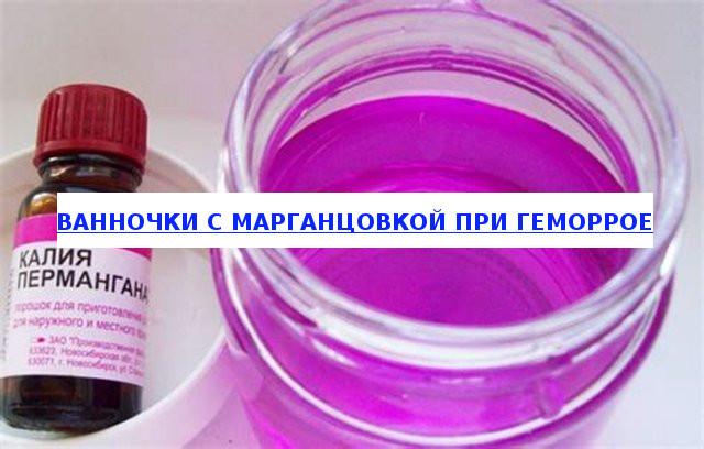 Марганцовка при молочнице: лечение, спринцевание, подмывание
