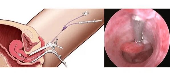 Особенности проведения гистероскопии матки