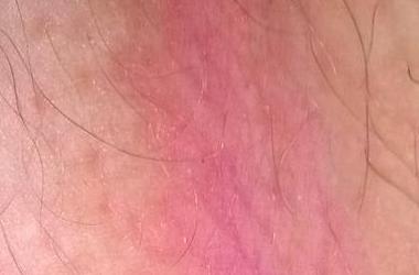 Аллергия на прокладки, синтетику и шерсть