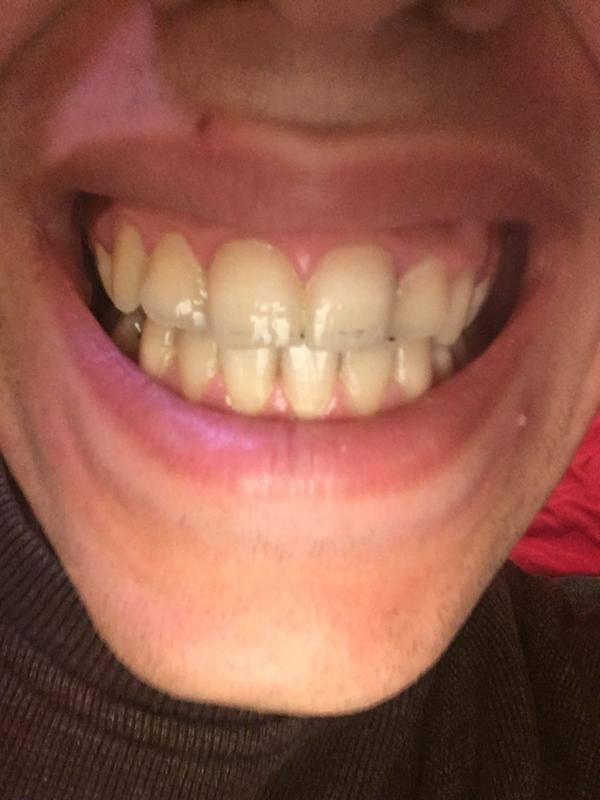 Важно знать: как происходит удаление зуба на нижней челюсти и в чем особенности процедуры?