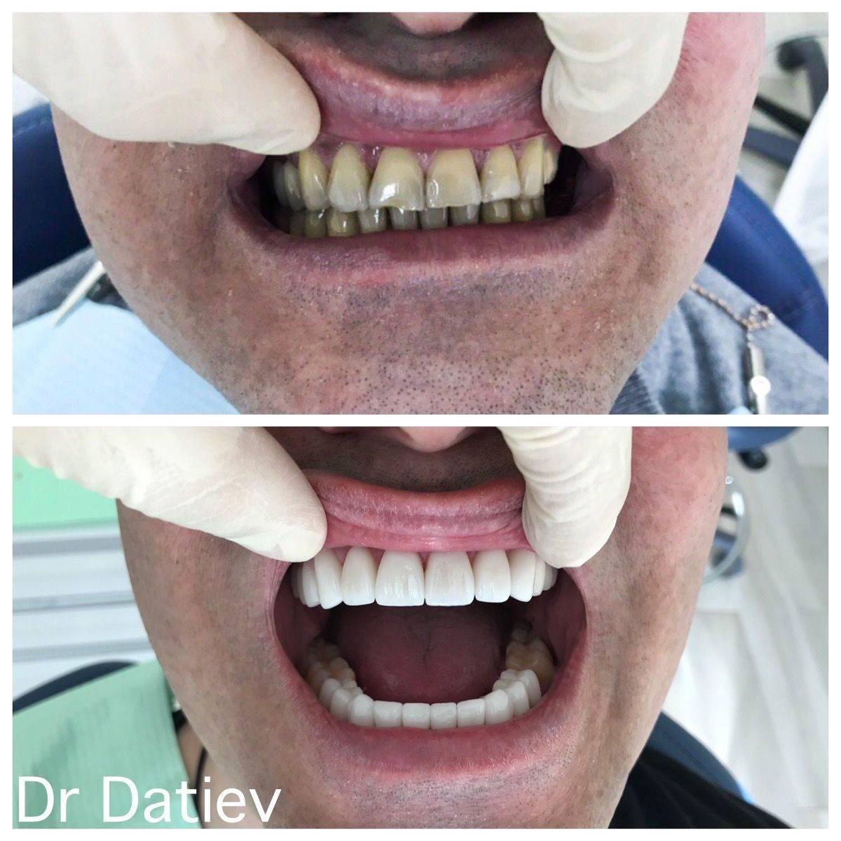 Как делают слепок зубов для пластинок
