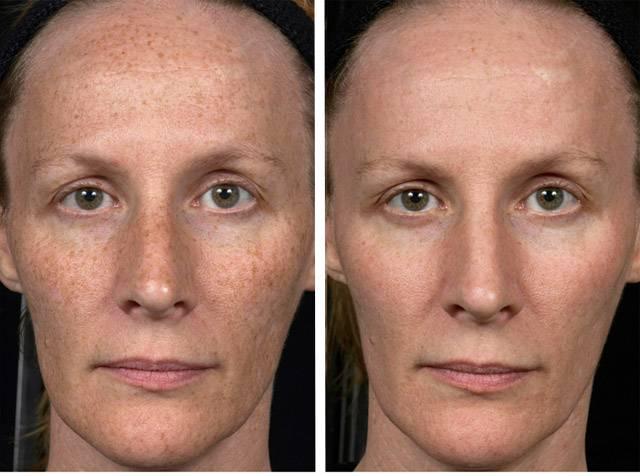 Лазерный пилинг: фото до и после, отзывы, последствия, противопоказания