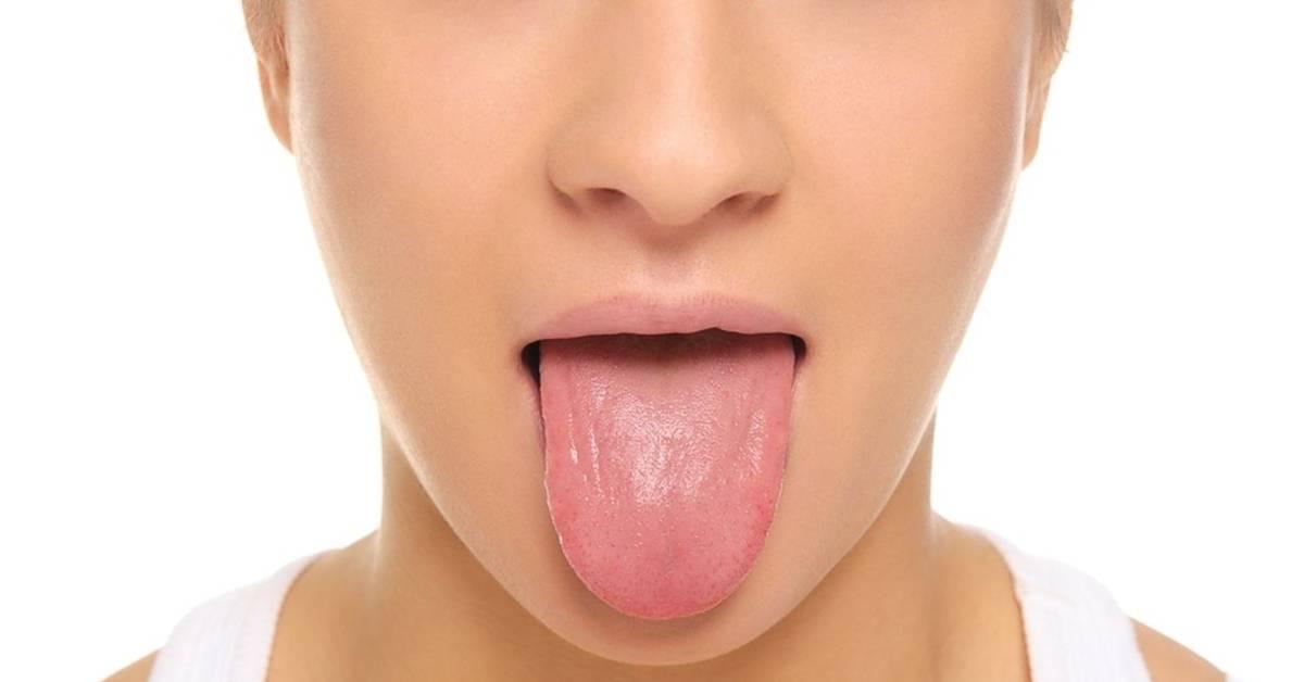 Кандидоз (молочница) полости рта