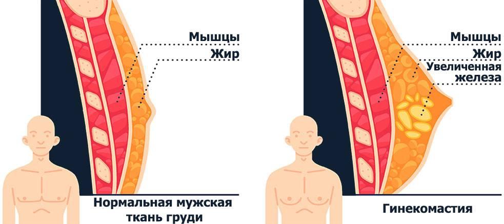 Уменьшение груди