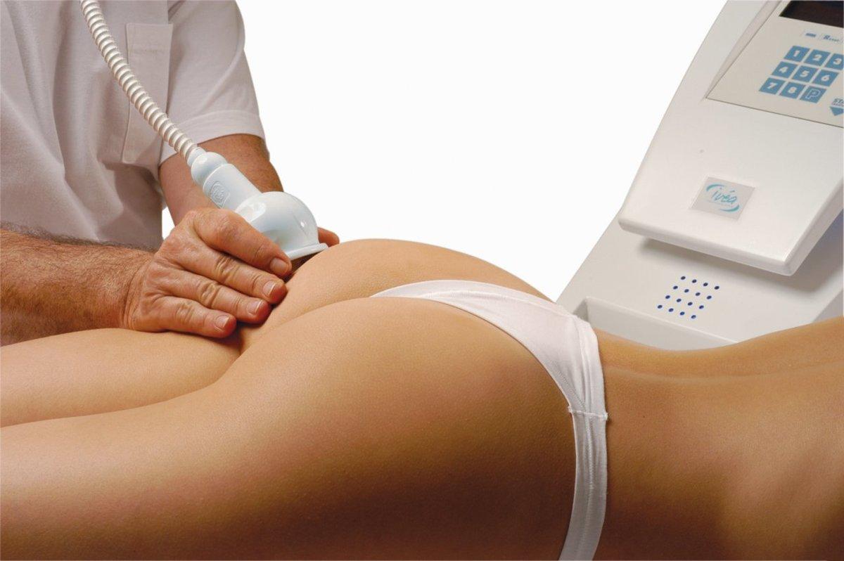 Зачем нужен вакуумный массаж и как делать его дома