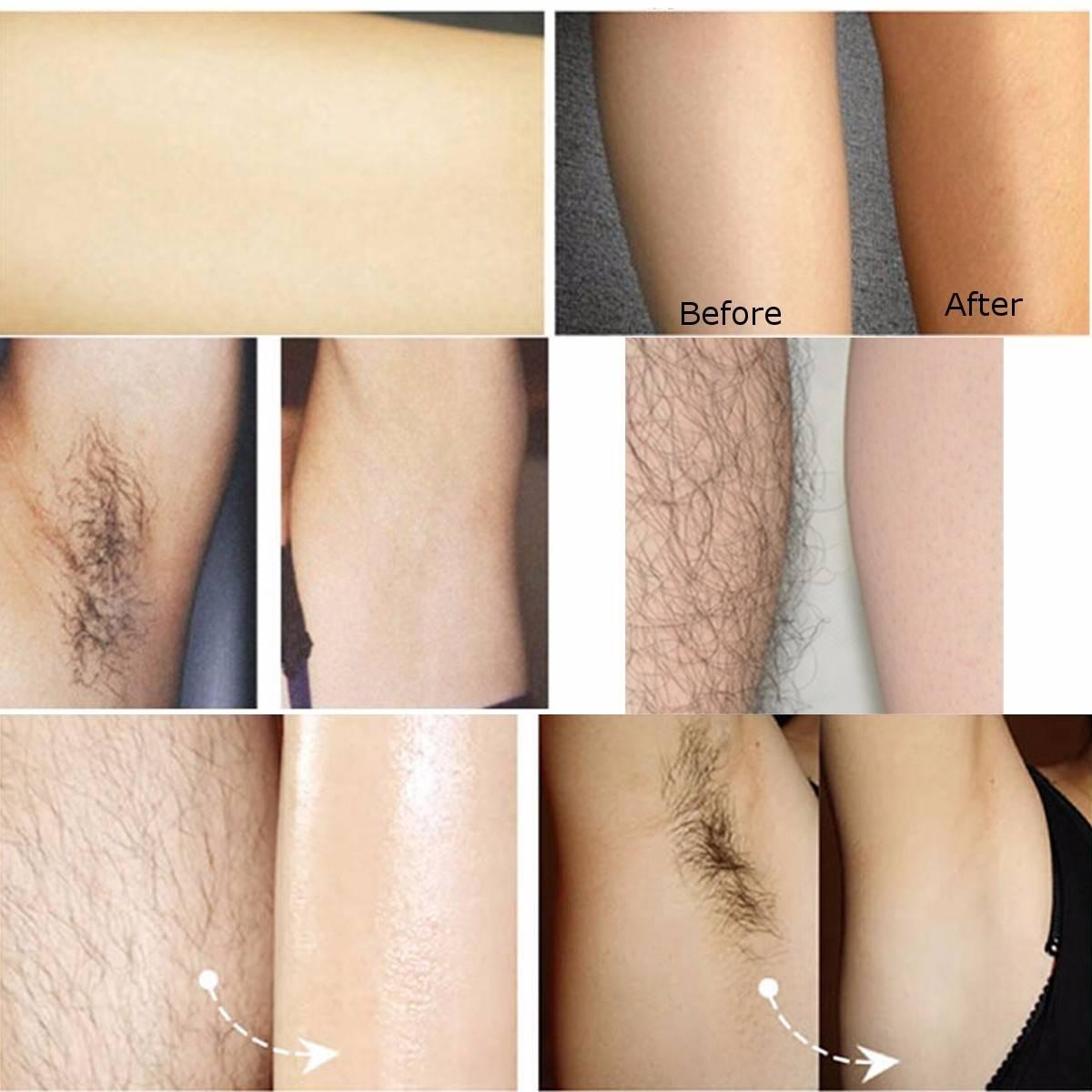Оптимальная длина волос для шугаринга в разных зонах