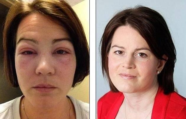 Аллергия на ботокс: неприятные последствия «безобидных» уколов