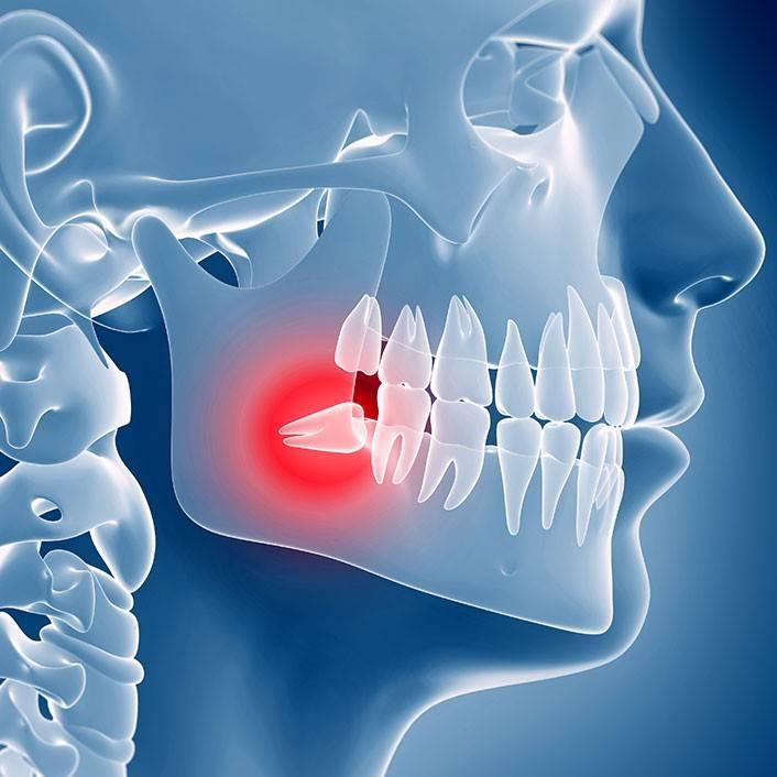 Как проводится сложное удаление зуба