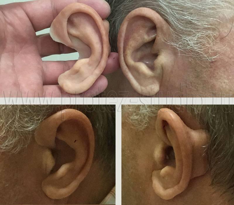 Микротия ушной раковины