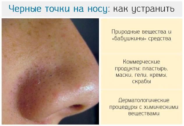 Как убрать черные точки на коже лица
