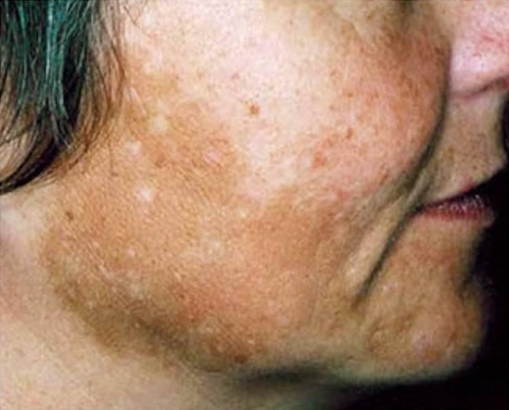 Мелазма и хлоазма на лице: как убрать нежелательную пигментацию