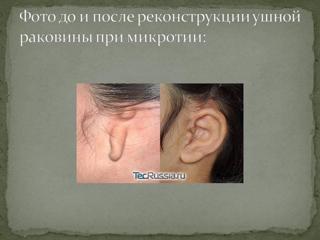 Микротия – недоразвитие ушной раковины: методы коррекции