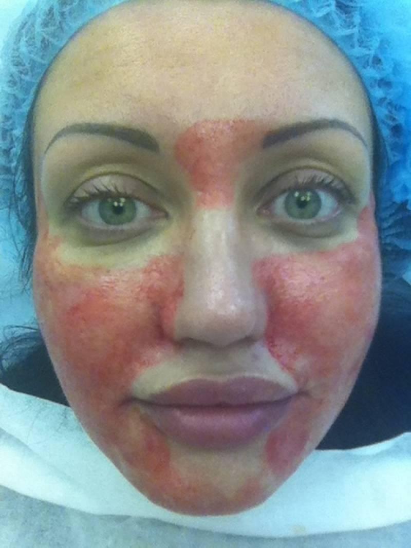 Плазменное омоложение лица косметологическими аппаратами — как выбрать лучший