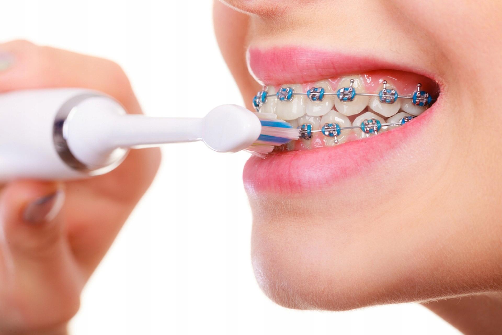Уход за брекетами и гигиена полости рта