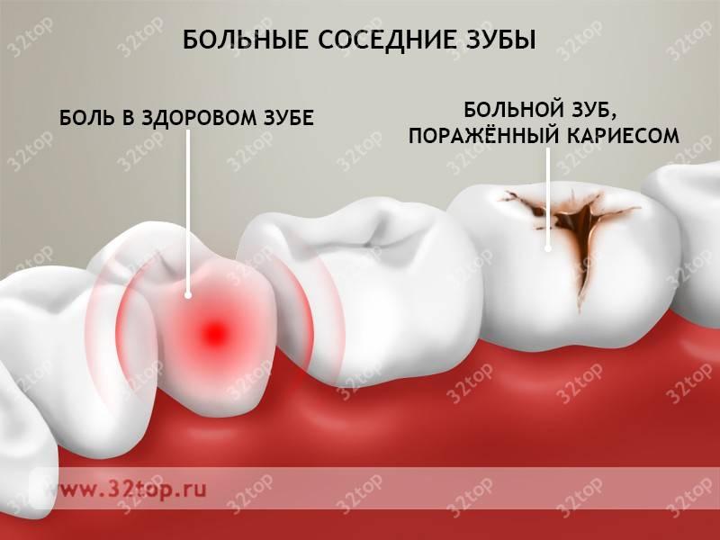Что делать с острой зубной болью, если она возникла ночью или в выходные, как от нее избавиться в домашних условиях?