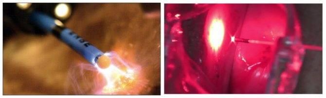 Методы прижигания эрозии шейки матки