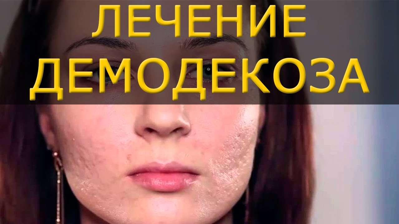 Методы лечения демодекоза с помощью народных средств