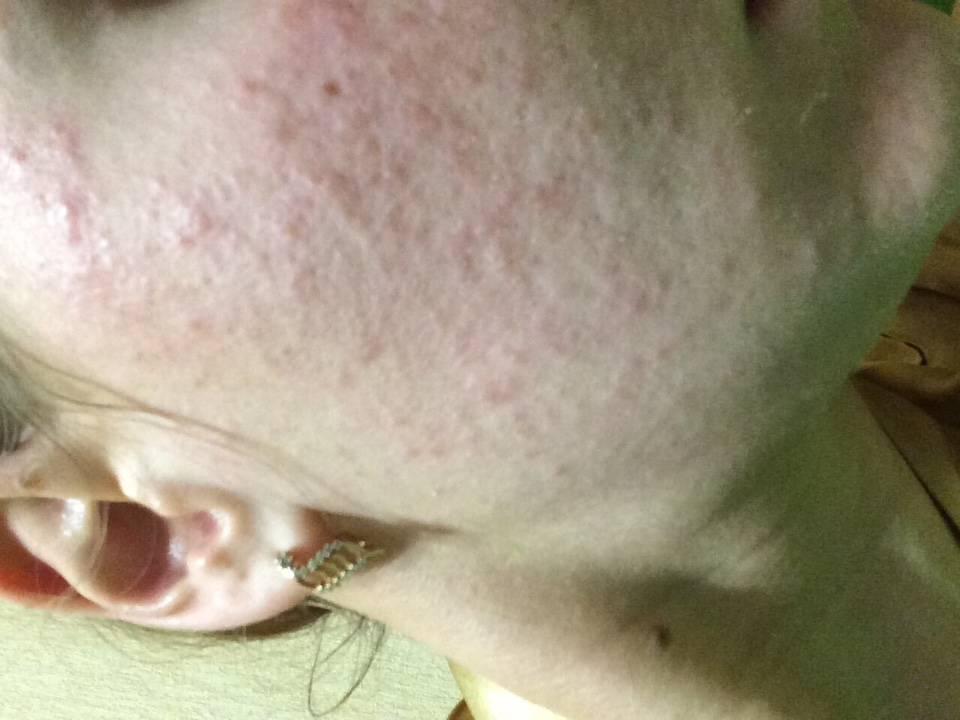 Виды высыпаний на коже у взрослых и детей: причины возникновения и лечение