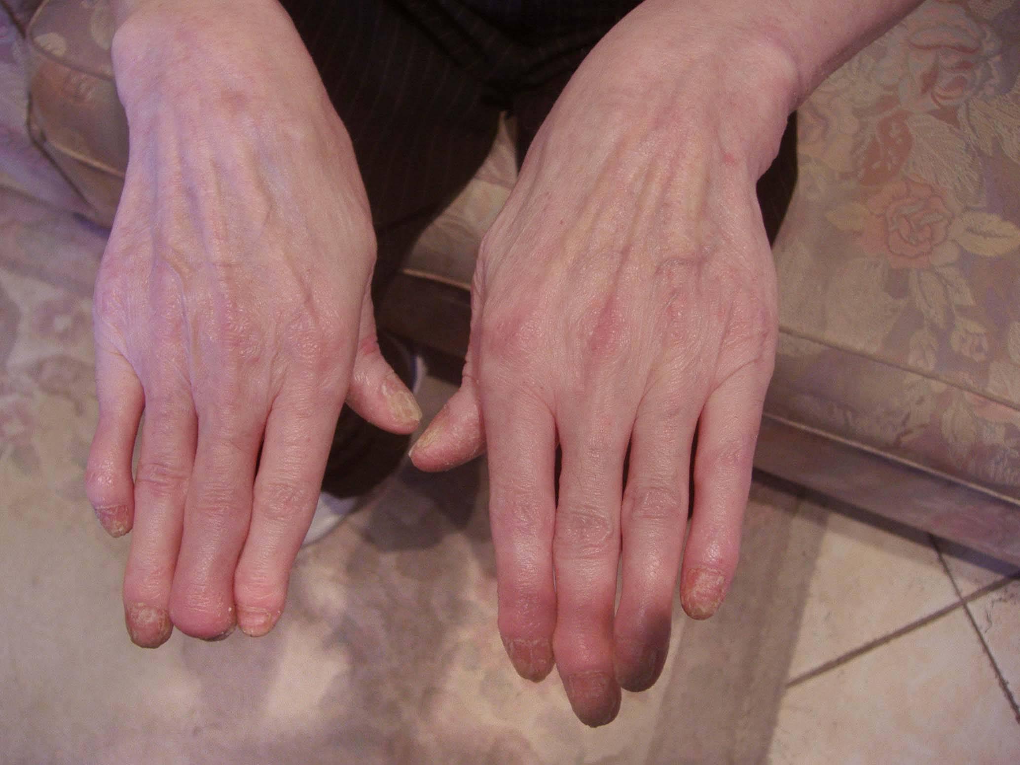 Почему шелушатся локти на руках у мужчин и женщин