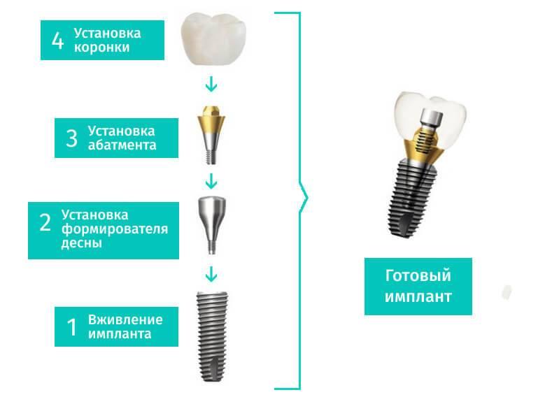 Как поставить и снять коронки на импланты, обзор цен